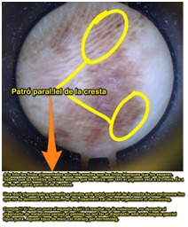 cas2-melanoma-acral