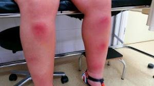 Manchas rojas dolorosas
