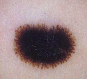 Cas 1_Dermatoscopia