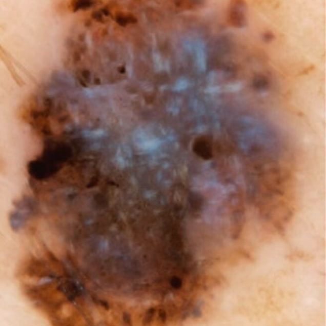 Cas 3_Dermatoscopia