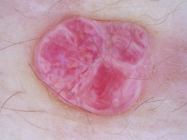 Dermatoweb. Angioma