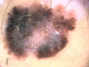 cas-1-foto-dermatoscopia