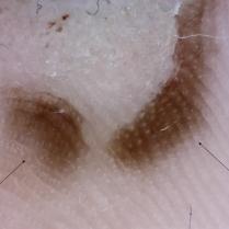 Dermatoweb.Patrón paralelo de la cresta, en el centro de la cual se observan muy claramente las salidas de los ductos ecrinos (flechas)