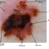 Diferentes tonos de rosa en una lesión. Ian McColl MD