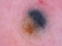 Dermatoweb. Combinación de un nevus azul (pigmentación azul homogénea, rectángulo) con un nevus melanocítico intradérmico (cuadrado) y un área mixta central. En la zona correspondiente al nevus m. intradérmico puede observarse una pigmentación marrón difusa, en la que destacan las salidas foliculares, dando un aspecto en pseudorreticulado, y algunos vasos en coma (flechas)