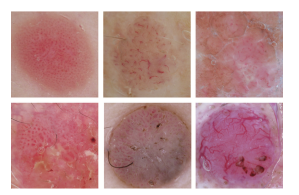Imagenes dermatoscopicas de los 6 tipos más comunes de morfologia vascular. Arriba a la izquiersa: vasos puntiformes, arriba en el centro: vasos en coma, arriba derecha: vasos lineales irregulares. Abajo a la izquierda:Vasos glomerulares, centro vasos en horquilla, derecha: vasos arboriformes