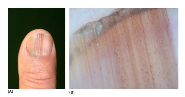 (A) imagen clícica de un Melanoma in situ de la matriz ungüeal (B)Este caso también muestra inclusiones granulares de melanina en la placa ungueal.
