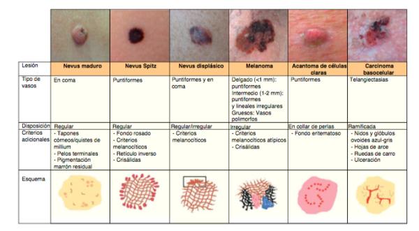 patro-vascular-l-melanocitiques