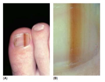 (A) Imagen clínica de Nevus en la matriz ungëal (B) La dermatoscopia muestra pequeñas inclusiones en el lecho ungëal y lineas marrones paralelas con grosor y espaciado regular.