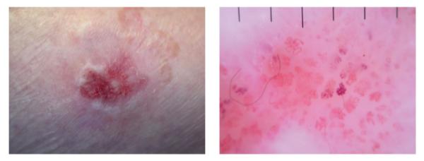 Placa ulcerada eritematosa con vasos glomerulares y eritema observado en dermatoscopia
