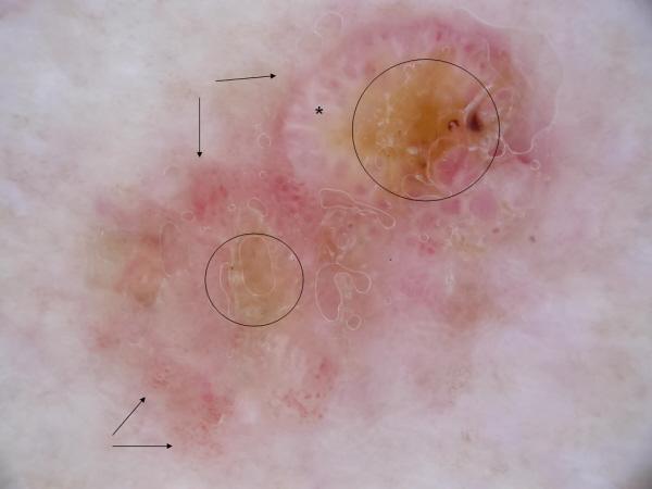 Enfermedad e Bowen. Dermatoscopia. Grupos de vasos glomerulares (flechas), algunos de ellos rodeados de un halo blanco (asterisco) y queratina (círculos)