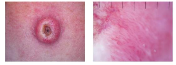 Un nódulo bien circunscrito en el brazo, con una corteza central: la dermoscopia muestra los vasos en horquilla en el margen del tumor típico de un tumor queratinizante, con los vasos arborantes centralmente; Histología confirmó un queratoacantoma