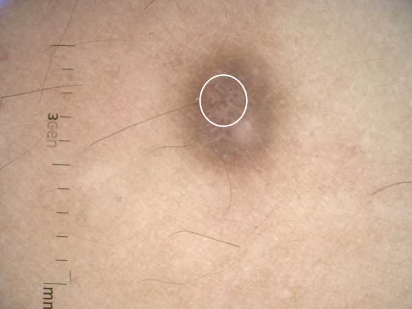 dermatoscopia dermatofibroma