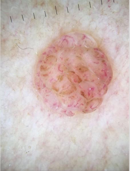 Dermatoscopia Nevus dérmico